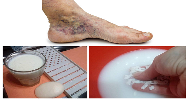 magical-recipe-for-varicose-veins-and-thrombosis-with-only-2-simple-ingredients-600x320