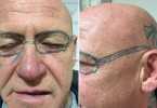 A stag weekend reveller from Swansea was left with lasting memories of a trip to Blackpool when he woke up to find a tattoo of a pair of Ray-Ban sunglasses on his face. © WALES NEWS SERVICE