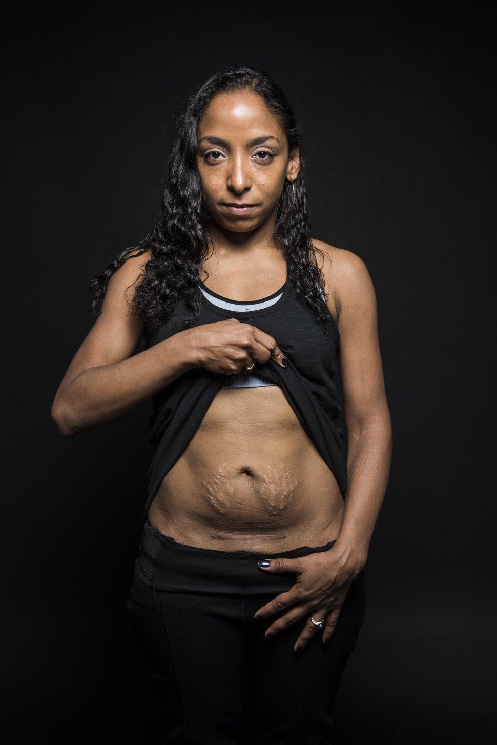 "NEW YORK, NY - MARCH 21:  Ligia (Li) Guyamier poses for a portrait for a ""C-Section Scar"" photo series  in New York on March 21, 2017. (Photo by Damon Dahlen, Huffington Post) *** Local Caption ***"
